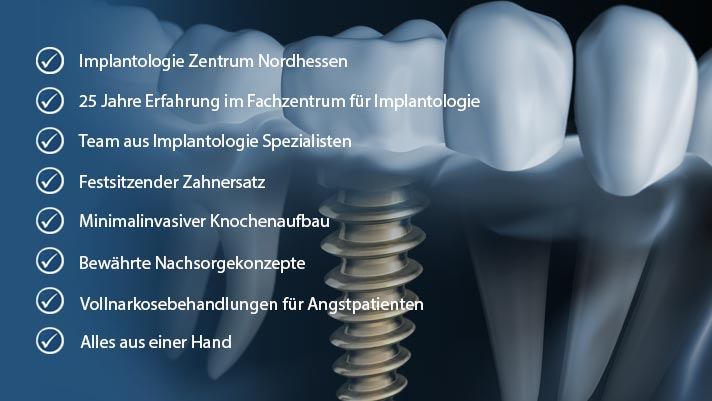 Implantologie für Wolfhagen