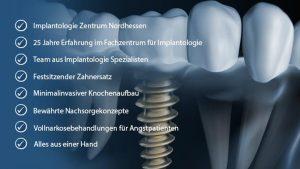 Wir vom Fachzentrum für Implantologie haben, wenn es um Zahnimplantate geht, eine mehr als 25-jährige Erfahrung.