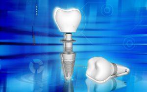 Spezialpraxis für Implantate uns Zahnimplantate