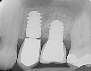 Sinuslift Röntgen Behandlungsabschluss