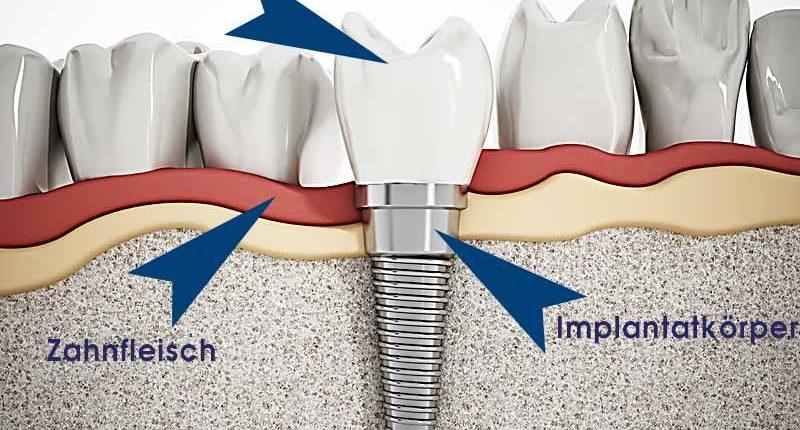 Zahnimplantate ersetzen die natürliche Wurzel.